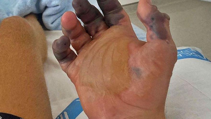 La picadura de araña de Ibiza es el primer caso que obliga a amputar dedos en España